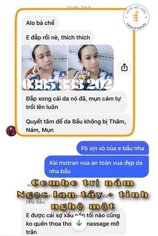 Review Tinh nghệ mật N'store by Thanh Nhi